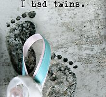 Breaking the Silence. I had Twins. by Franchesca Cox