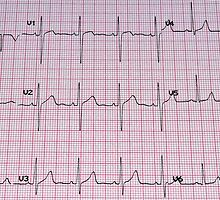 Electrocardiogram. by FER737NG