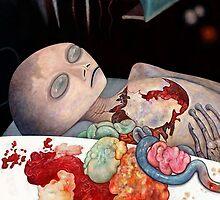 Alien Autopsy by EricKuns