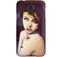 You Should See the Other Guy Samsung Galaxy Case/Skin
