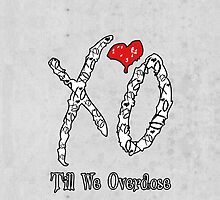 XO Till We Overdose (iPhone/iPod Case) by YungFly413