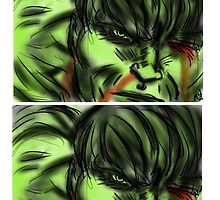 HULK HURT  by DORKABOUT