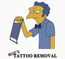 Moe's Tattoo Removal by LittleSister