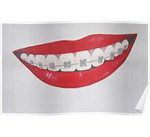 smile with braces Poster