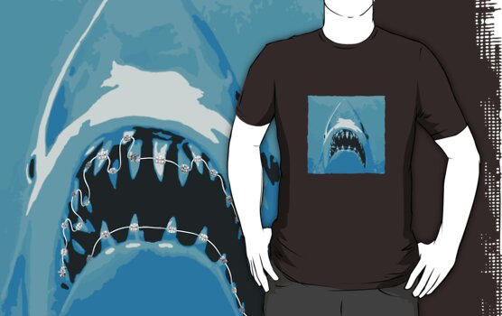 Shark Braces by ManlyDesign