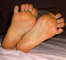 Ten Toes Some Callus by photobylorne
