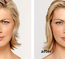 Botox before and after by KathyWinston