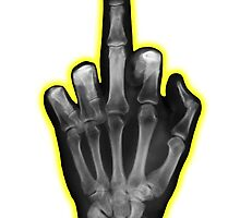 Middle Finger X-Ray - 2 by Rev. Shakes Spear