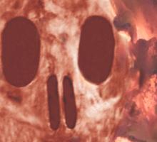 Skull Burning Sticker