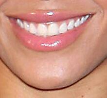 Dental implants in Encino by dentalartssmile