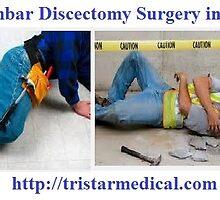 Micro-Lumbar Discectomy Surgery in Santa Ana - tristarmedical.com by tristarmedical0