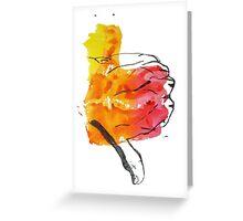 Thumbs Down Greeting Card