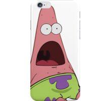 Surprised Patrick (Shirt/Sticker) iPhone Case/Skin