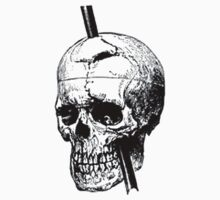 The Skull of Phineas Gage Vintage Illustration by taiche