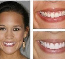 Dental Implants North Carolina by destinat