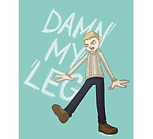 DAMN MY LEG Photographic Print