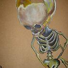 Hydrocephelus by Chad  Schuety