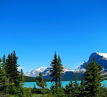 Bow Lake, Canadian Rockies, Alberta, Canada by Lena127