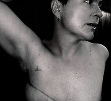 breast cancer - stage 3. by Gideon du Preez Swart