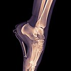 x-ray of a ballet dancer standing on pointe  by PhotoStock-Isra