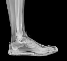 X-Ray of a foot and ankle in a trainer  by PhotoStock-Isra
