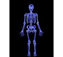 XRAY (Skeleton) iPhone Case Photographic Print