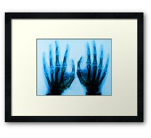 The Man with the X-Ray Eyes. Framed Print