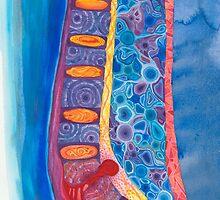 Herniated Disc 1 by Marika Reinke