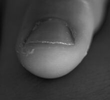 Fingernail II by Rachel Ward