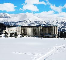 Lake Louise, Banff Alberta - Fairmont Hotel by vkatelynng