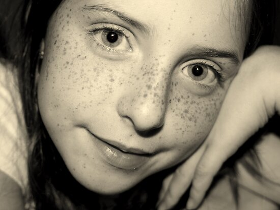 Freckle Face by Heather Rampino