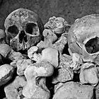 Them bones! by Kim Slater