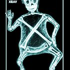X is for X-Ray by Michael Alesich