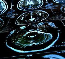 MRI 1 by Xtx0510