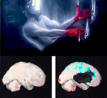 My brain tumour; scans. and a picture! by pauldrobertson