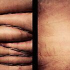 Obesity by Adam Brunckhorst